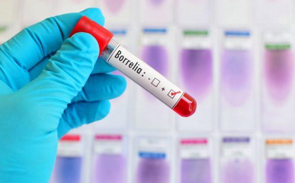 Kroplówki witaminowe w leczeniu boreliozy