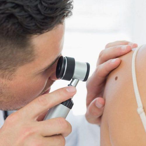 Chirurgiczne usuwanie znamion skórnych – jak przygotować się do zabiegu?