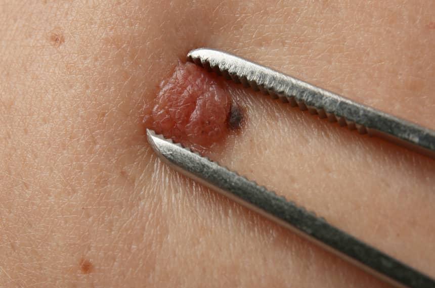 Przeciwwskazania do zabiegu chirurgicznego usuwania znamion skórnych